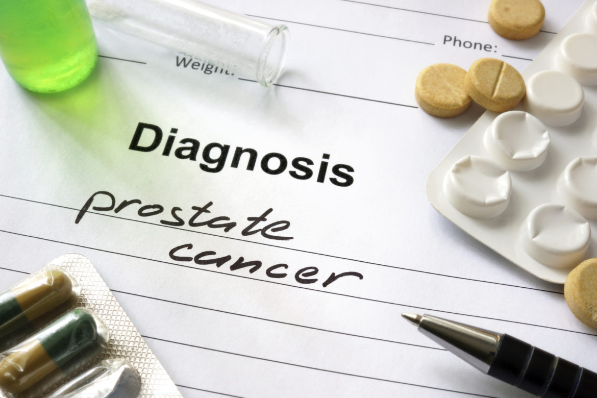 8 Things You Can Do To Prevent Prostate Cancer