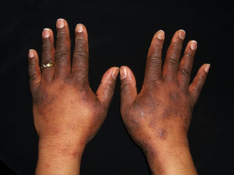 Eczema? Would you consider taking a bleach bath? – WeCare
